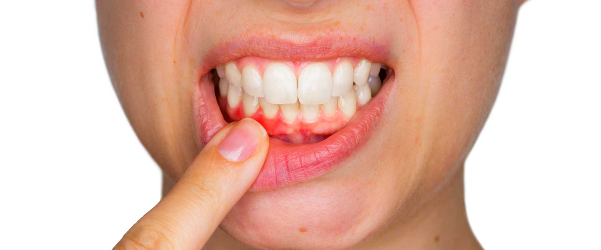 Oakridge Crossing Dental | SW Calgary Dentist | Periodontal Care