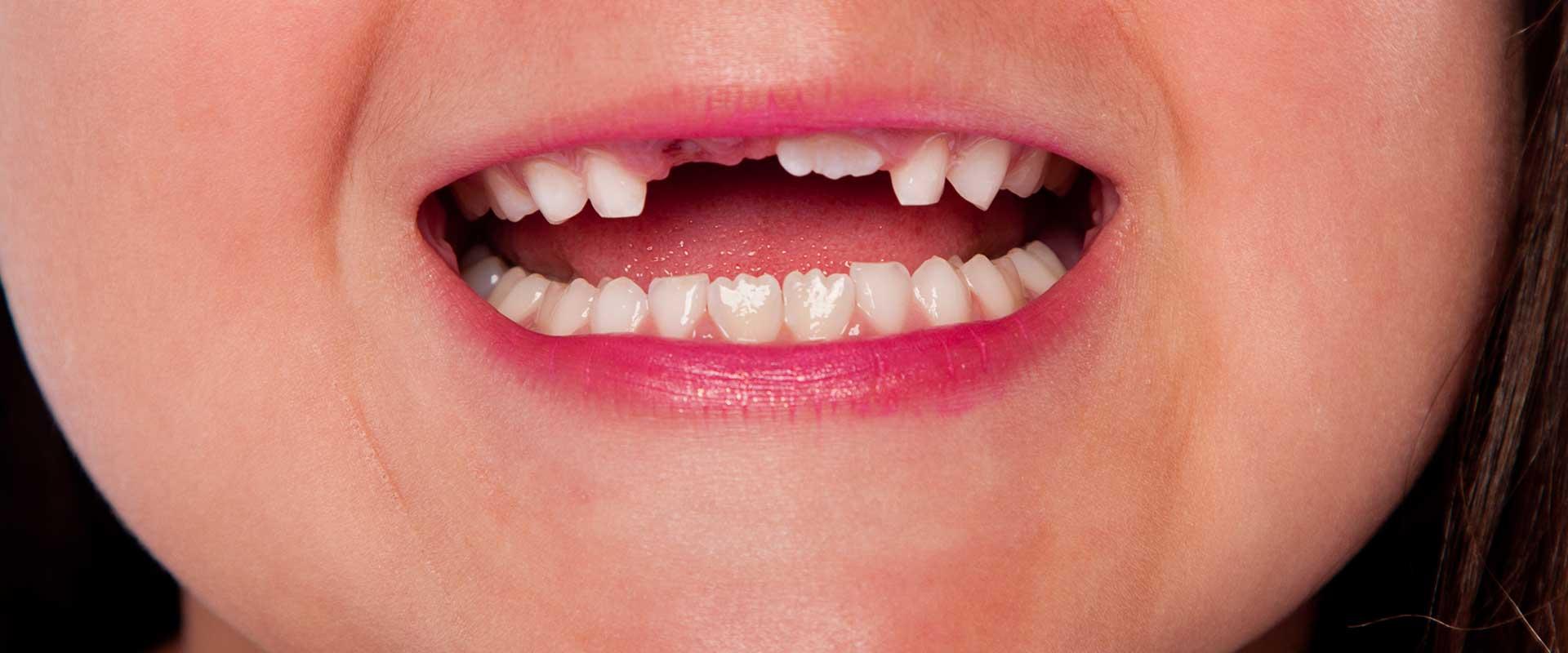Oakridge Crossing Dental | SW Calgary Dentist | Tooth Extractions