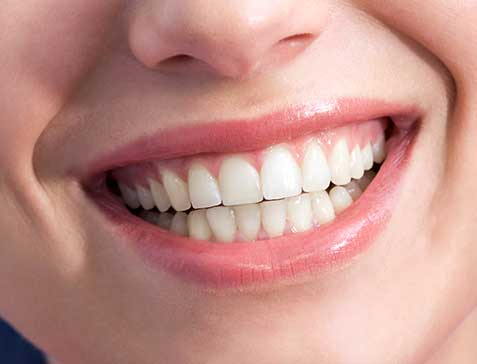 Oakridge Crossing Dental | SW Calgary Dentist | Teeth Whitening